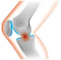膝軟骨のすり減り