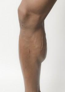 シンスプリント(すねの内側の痛み・腫れ)の発生場所