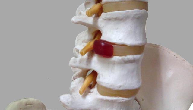 椎間板説明図