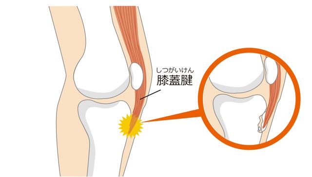 オスグットでの脛骨粗面の説明