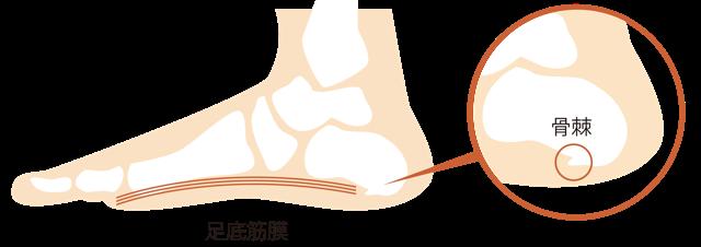 足底腱膜の説明図